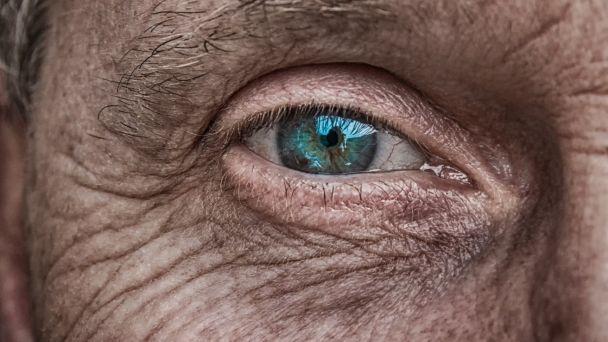 Povinnosť dôchodcov s dôchodkom zo zahraničia